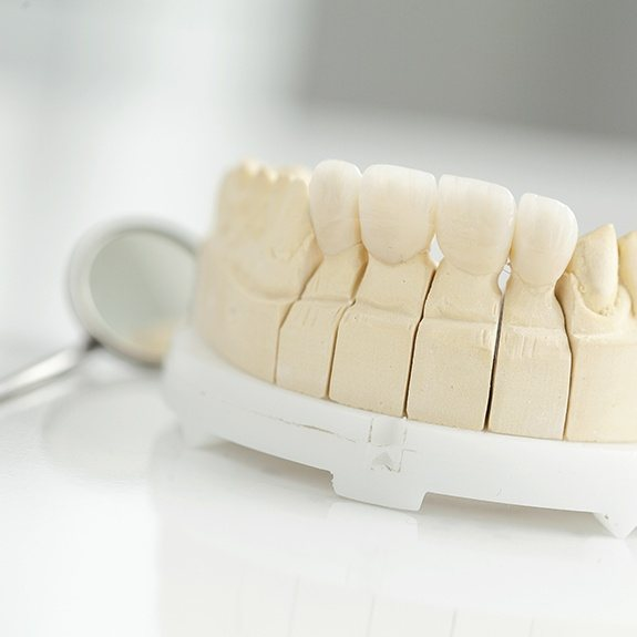 Model smile with metal-free dental restoration