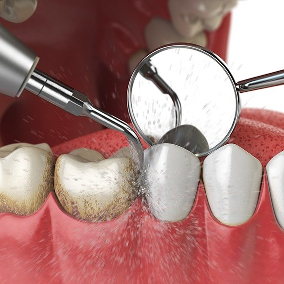 Animted periodontal maintenance treatment
