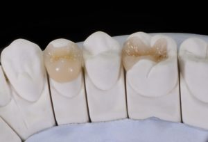 diagram of fillings and dental crowns